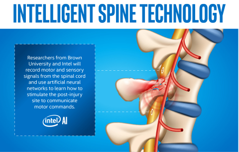 With Hopes of Helping Paralyzed Patients Regain Movement, Intel and Brown University Deploy AI