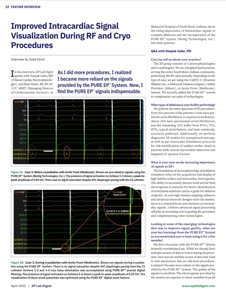 Improved Intracardiac Signal Visualization During RF and Cryo Procedures