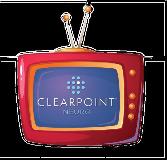 Live Peer-to-Peer Webinar Series: Best Practices for Optimizing Efficiency in ClearPoint Procedures