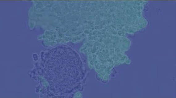 Adaptimmune Affinity Enhanced T-cells vs. Melanoma
