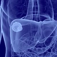 Hepatocellular Cancer