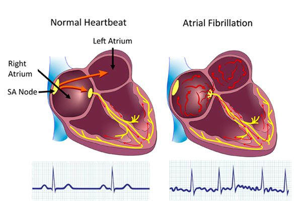 Atrial Fibrillation (AFib) Background