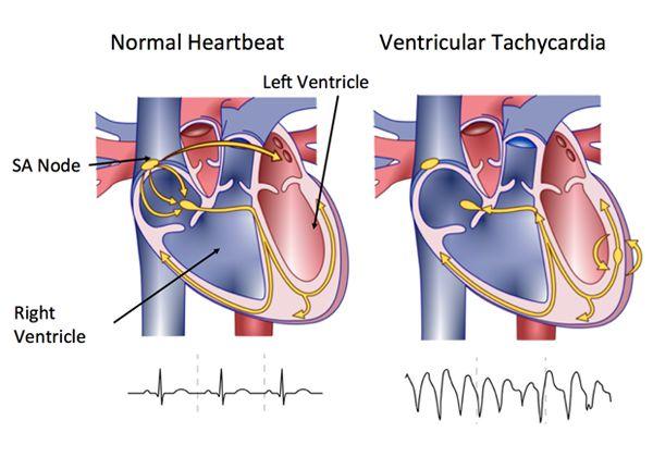 Ventricular Tachycardia (VT)