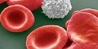 人源CAR-T疗法挽救三位急淋白血病患者生命,中国人源CAR-T研究已比肩国际先进水平