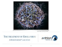 The Treatment of the Ebola Virus