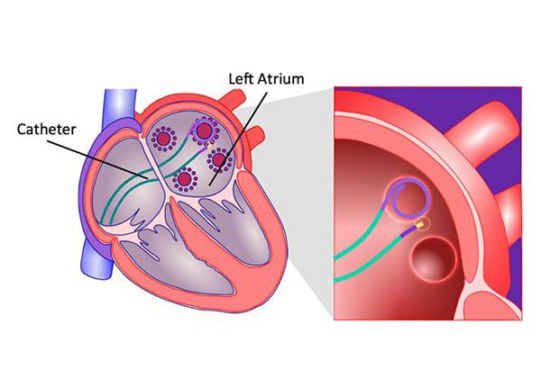 Ablation: One Current Solution for Atrial Fibrillation (AFib)