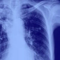 Non-Small Cell Lung Cancer (NSCLC)