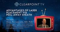 ClearPoint TV – Advantages of Laser Catheter Placement via Peel-Away Sheath, Dr. Mark Richardson