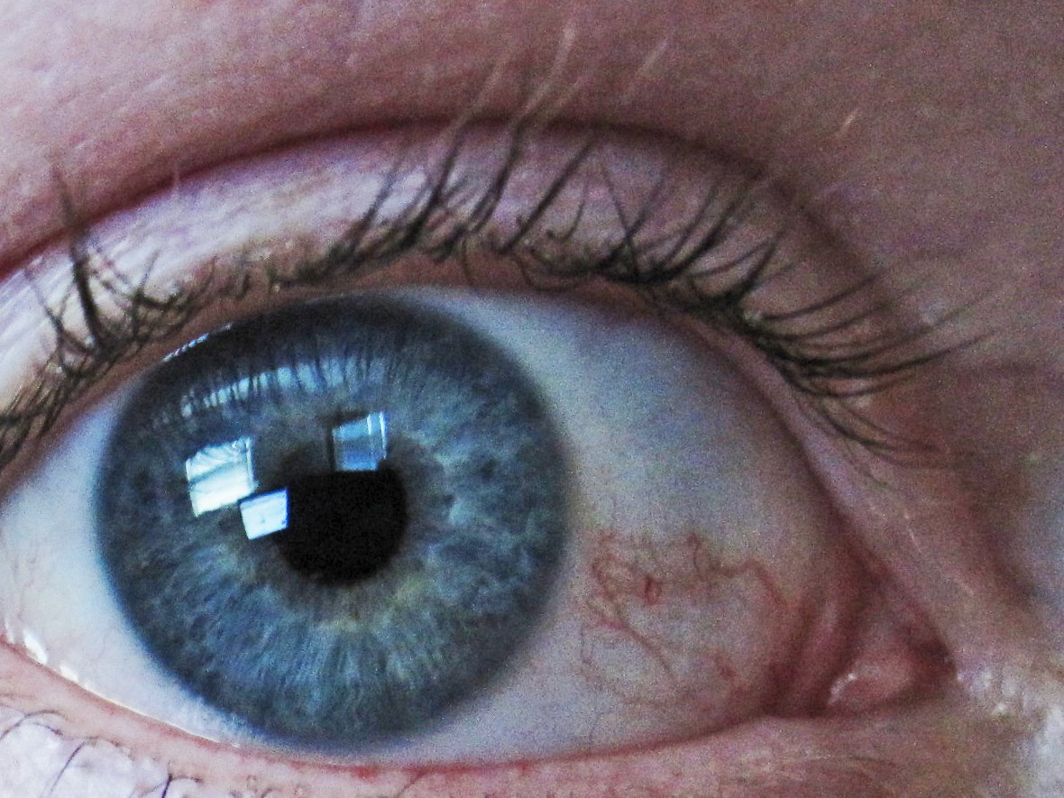 it-can-be-used-to-treat-glaucoma