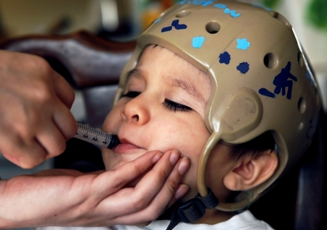 it-can-help-control-epileptic-seizures