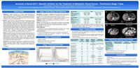 Archexin, A Novel AKT-1 Specific Inhibitor for the Treatment of Metastatic Renal Cancer – Preliminary Stage 1 Data