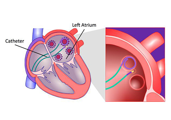 Ablation: One Current Solution for Atrial Fibrillation (AFib)
