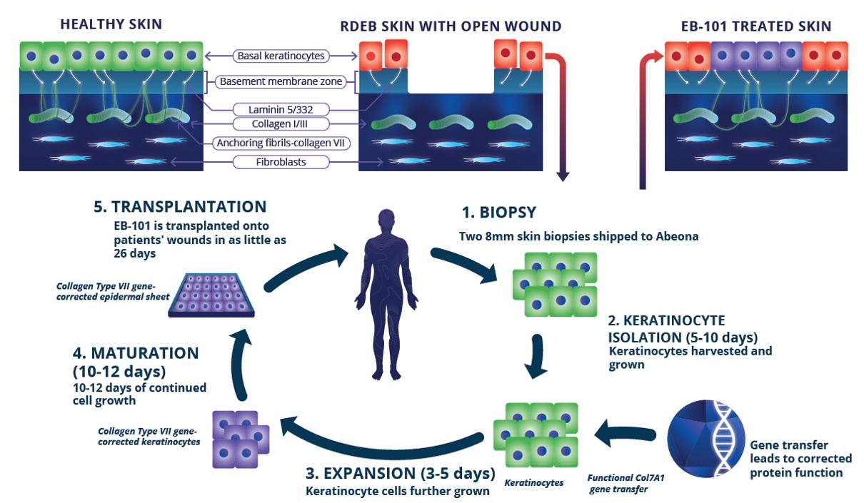 EB-101 Treatment Process Thumbnail