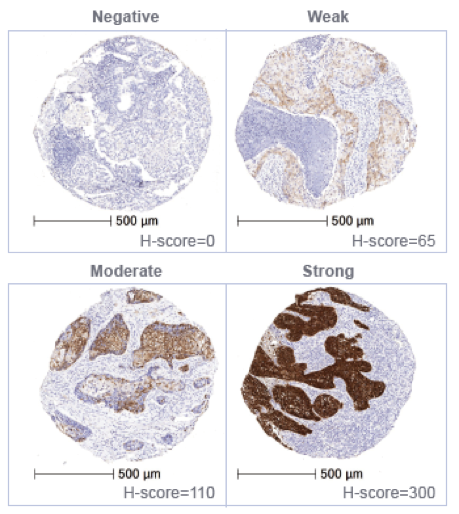 NSCLC samples