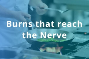 IL-411-burns-that-reach-the-nerve