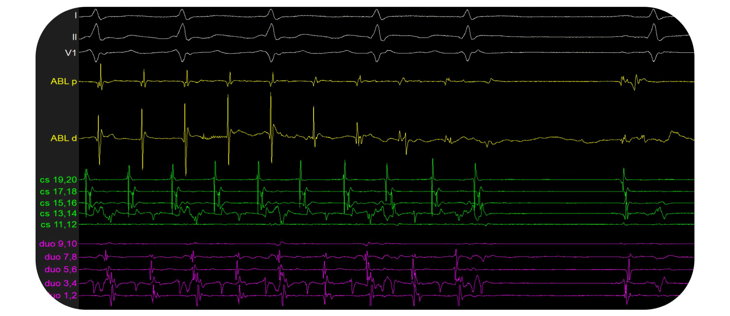 PURE EP™ - Atrial Tachycardia