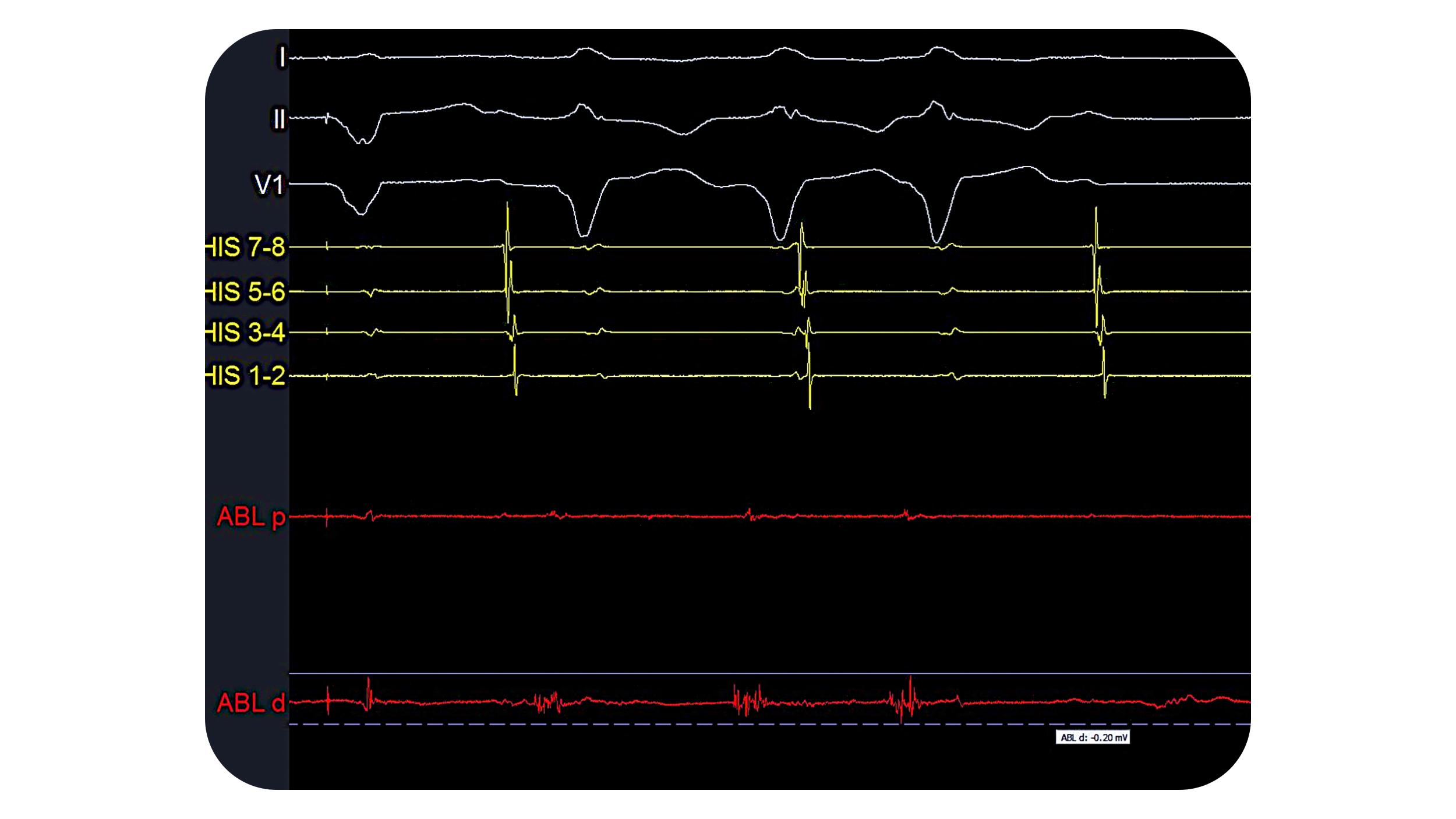 PURE EP - Ventricular Tachycardia