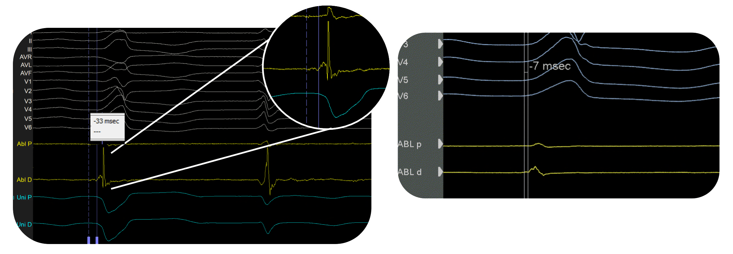 PURE EP - Premature Ventricular Contraction