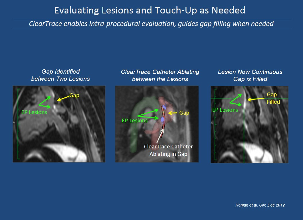 Evaluating Lesions and Touch-Up as Needed