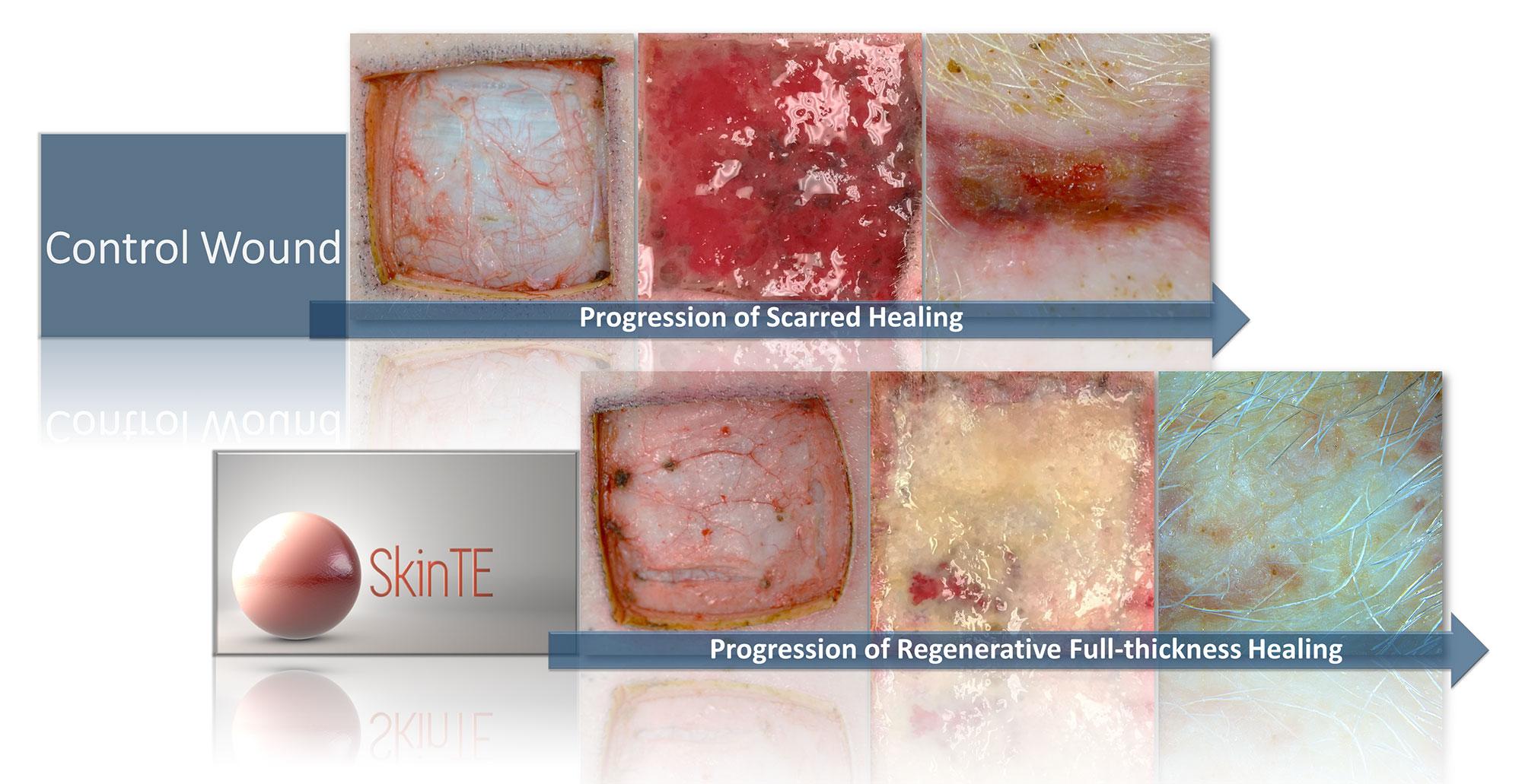 SkinTE Regenerative Progression