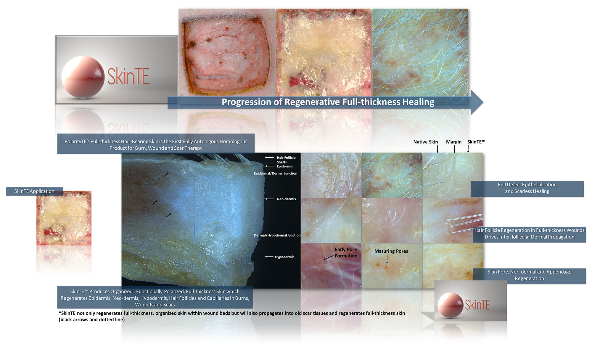 SkinTE Results in Scarless Healing with Hair Growth