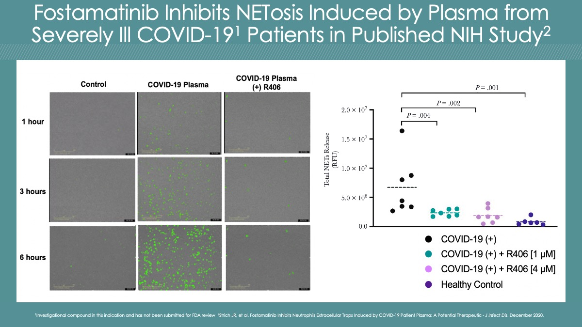 Fostamatinib Inhibits NETosis Induced by Plasma from Severly Ill COVID-19 Patients