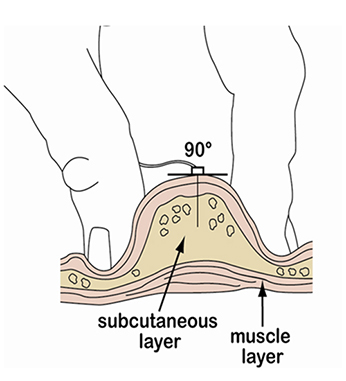 Needle Insertion
